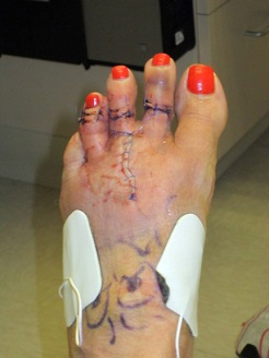 foot 053113