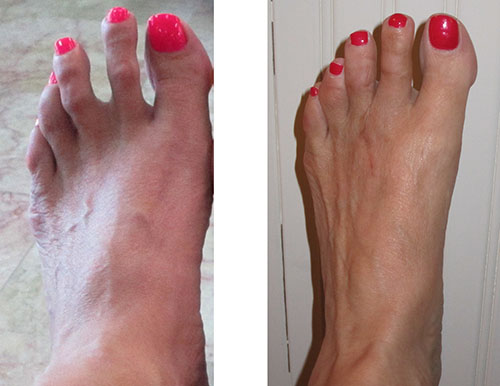 Left Foot before and After Surgery