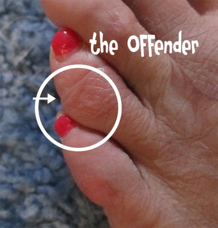 The toe offender